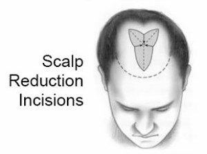 scalp-reduction-incisions